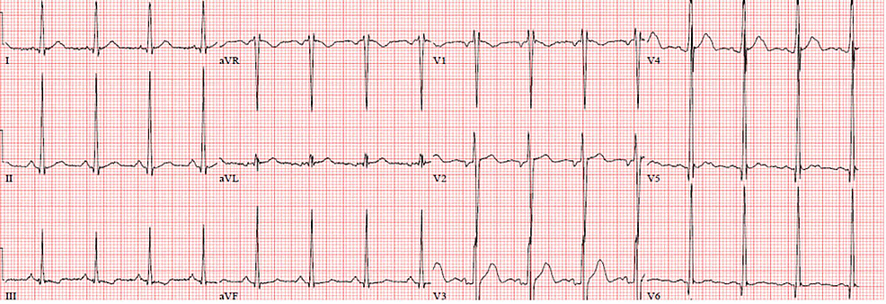 ECG-showed-normal-sinus-rhythm,-with-normal-axis-and-intervals,-and-LVH.