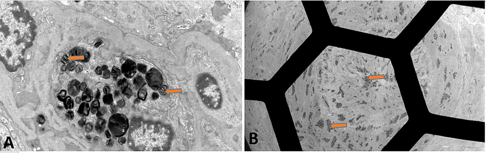 EM-of-renal-biopsy-showing-(A)-numerous-electron-dense-myelin-bodies-in-the-endothelial-cell-cytoplasm-of-a-glomerular-capillary-loop-and-(B)-artery-with-myelin-bodies-visible-within-smooth-muscle-and-endothelial-cells.