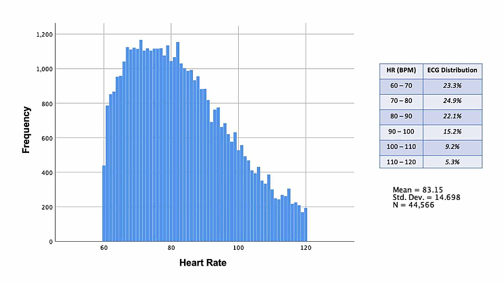 Electrocardiogram-report-heart-rate-distribution