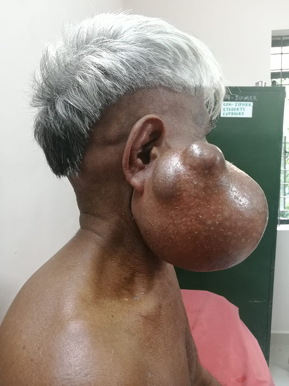 Clinical-image-of-the-patient-(Case-1)-showing-a-large-right-sided-parotid-swelling