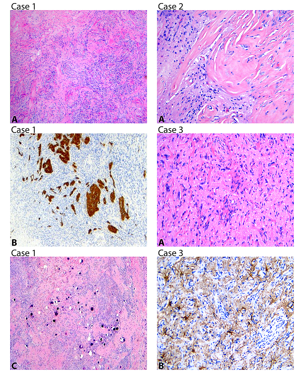 Case-1:-(A)-Meningothelial-proliferation-infiltrating-into-brain-parenchyma-H&E-(4X).-(B)-GFAP-highlighting-entrapped-gliotic-brain-parenchyma-(H&E-10-X).-(C)-Numerous-psammomatous-calcifications-H&E-(4X).-Case-2:-(A)-Irregular-interface-between-dense-fibrous-tissue-and-brain-parenchyma-H&E-(10X).-Case-3:-(A)-Small-caliber-vessels-and-meningothelial-perivascular-meningothelial-fibroblast-like-proliferation-illustrating-invasion-into-brain-parenchyma-with-entrapped-and-slightly-enlarged-neurons-H&E-(10X).-(B)-GFAP-immunoreactivity-in-astrocytes-(10X).