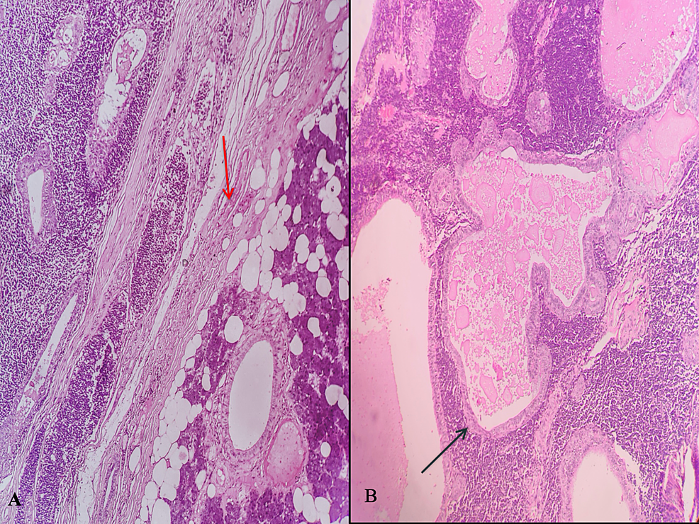 Photomicrographs-of-histopathological-sections