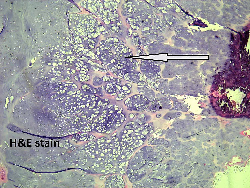 Atypical-chondrocytes.
