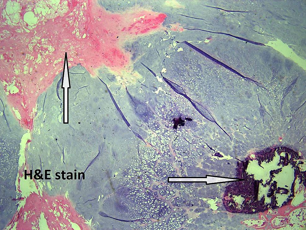 Myxoid-degeneration-with-bone-formation.