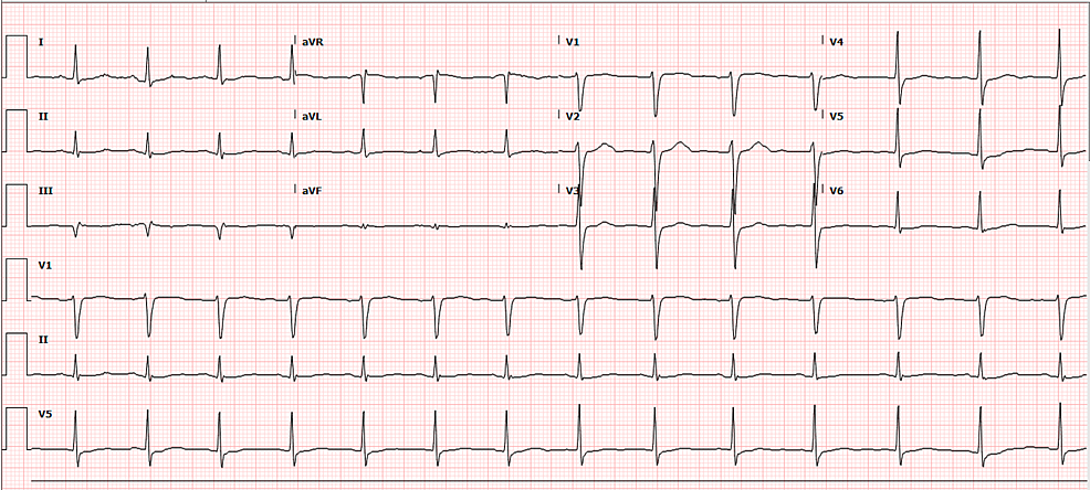 ECG-six-months-after-admission-showing-resolution-of-T-wave-inversion-on-precordial-leads-and-QTc-at-369-ms.
