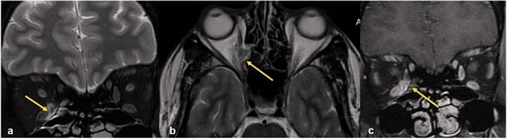 MRI-of-orbit