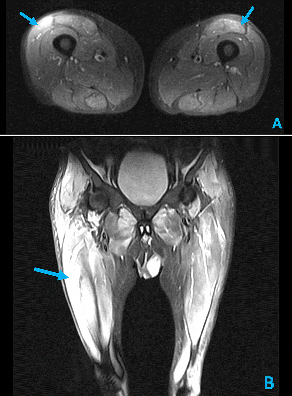 Axial-(A)-and-Coronal-(B)-STIR-MRI-images-of-the-lower-extremities-demonstrating-bilateral,-multi-compartmental-myositis-(arrows)-with-severe-involvement-of-rectus-femoris,-semimembranosus,-and-adductor-musculature.--