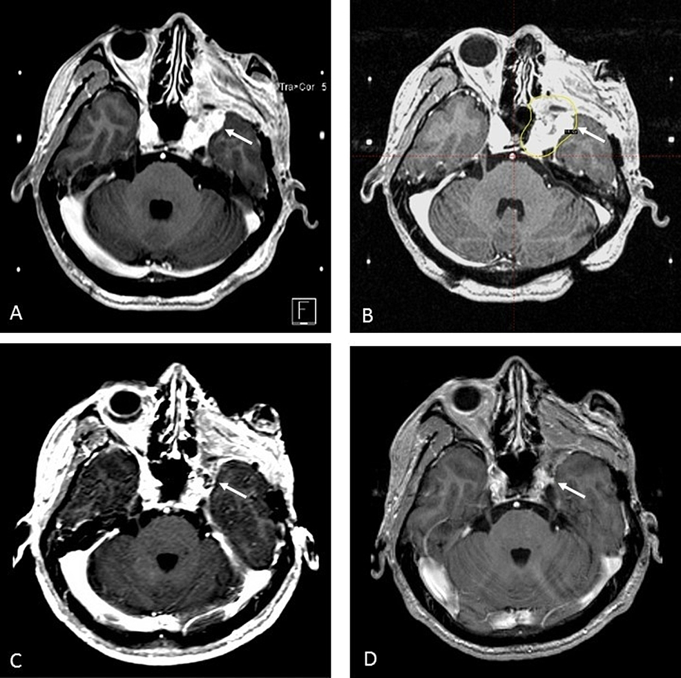 Stereotactic-Radiosurgery-Treatment-for-Recurrent-Nasopharyngeal-Carcinoma