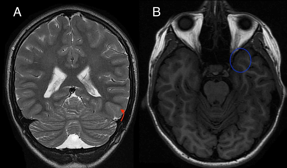 Coronal-T2-weighted-MR-image-of-the-brain-(Figure-1A)-demonstrates-a-focus-of-hyperintensity-within-the-left-temporal-lobe-(curved-red-arrow).-Axial-T1-weighted-MR-image-of-the-brain-(Figure-1B)-demonstrates-mild-asymmetry-of-the-hippocampal-regions,-with-slight-hyperintensity-seen-in-the-left-hippocampus-(blue-circle).