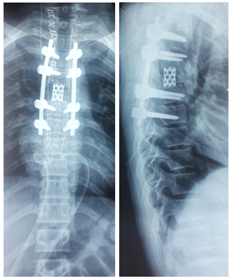 Intraoperative-anteroposterior-and-lateral-view-x-ray-of-the-thoracic-spine-showing-cage-and-pedicle-screw-fixation