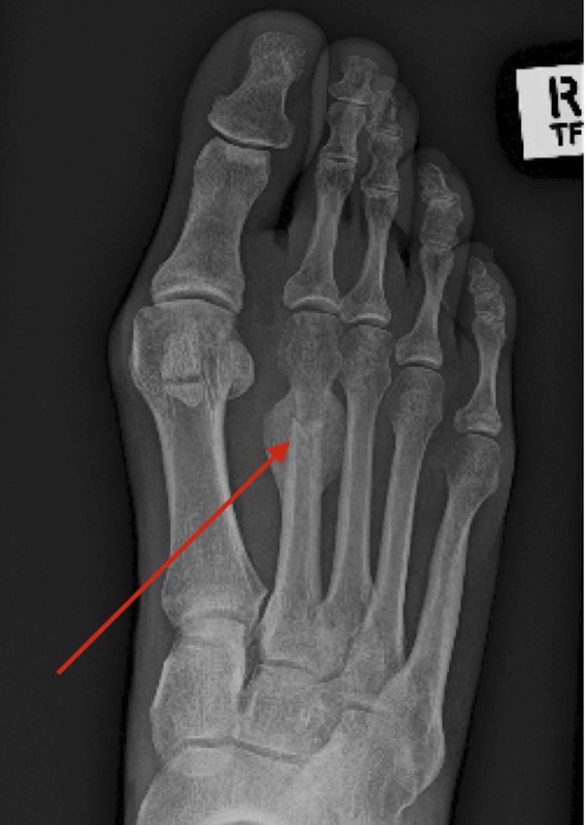 Cureus | Surgical Realignment of a Dorsiflexed Metatarsal Fracture