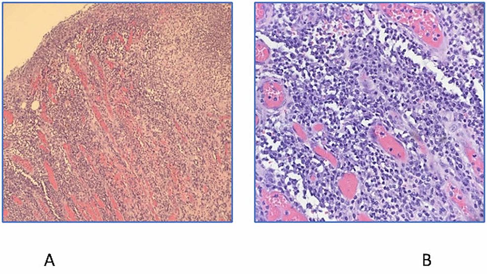 Colonic-ulcer-comprises-fibrinopurulent-exudate-at-the-surface-and-underlying-granulation-tissue-with-chronic-inflammatory-cells-and-numerous-plasma-cells.-Magnification-of-×100-(A)-and-×400-(B).