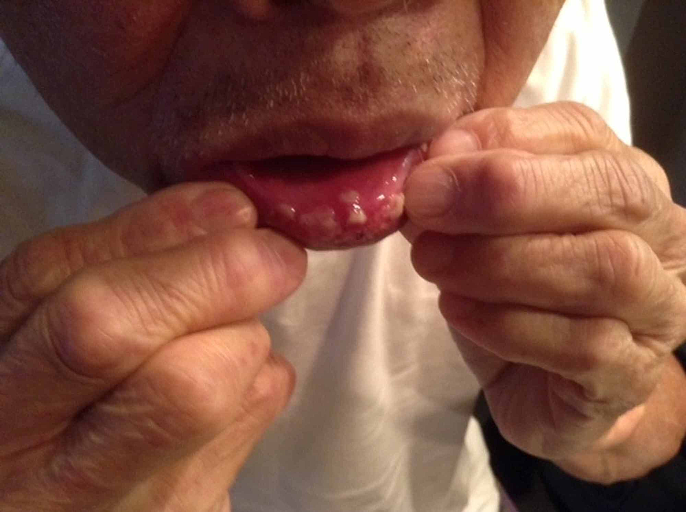 Lower-lip-eight-days-after-vaccination