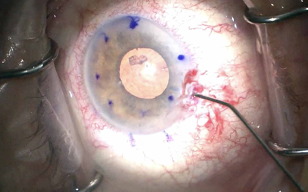 Intraoperative-view-of-retained-lens-fragment