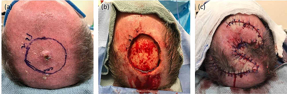 Patient-A:-(A)-pre-excision,-(B)-post-excision-defect-illustrating-exposed-bone-devoid-of-pericranium,-and-(C)-reconstructed-scalp-wound-with-local-tissue-rearrangement-(ortichochea-flap)