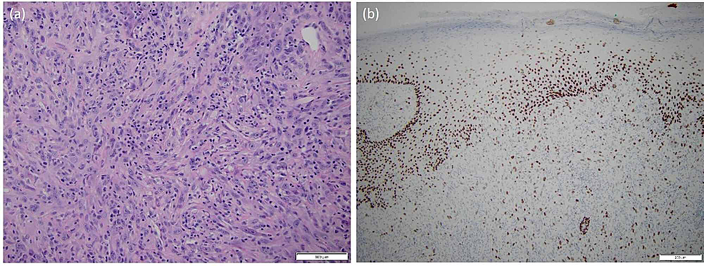 Patient-A:-(A)-a-representative-routine-H&E-section-at-20x-showing-spindled-and-undifferentiated-histomorphology-classically-seen-in-carcinosarcoma-and-(B)-a-representative-immunohistochemical-stain-at-10x-showing-variable-p63-positivity-targeting-the-diagnosis-of-carcinosarcoma