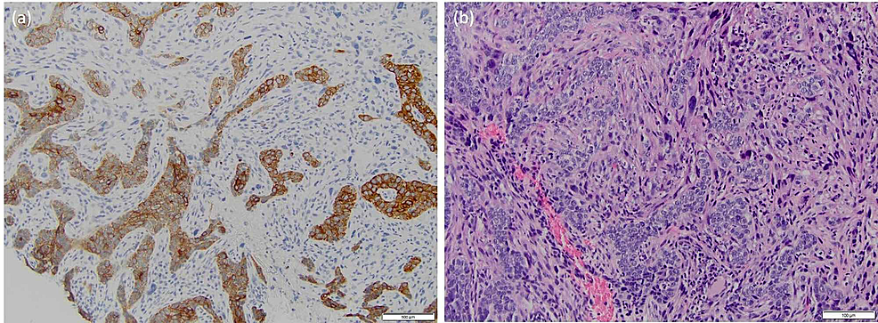 Patient-B:-(A)-basal-cell-carcinosarcoma-showing-biphasic-cytology-at-20x-and-(B)-differential-cytokeratin-immunostaining-at-20x-magnification-with-sarcomatoid-cells-staining-negative