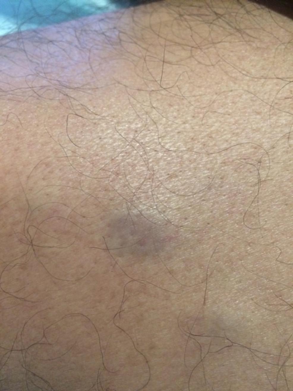 Nodular-lesions-of-plasma-cell-leukemia-cutis-on-the-proximal-arm-of-a-man-with-plasma-cell-leukemia-myeloma