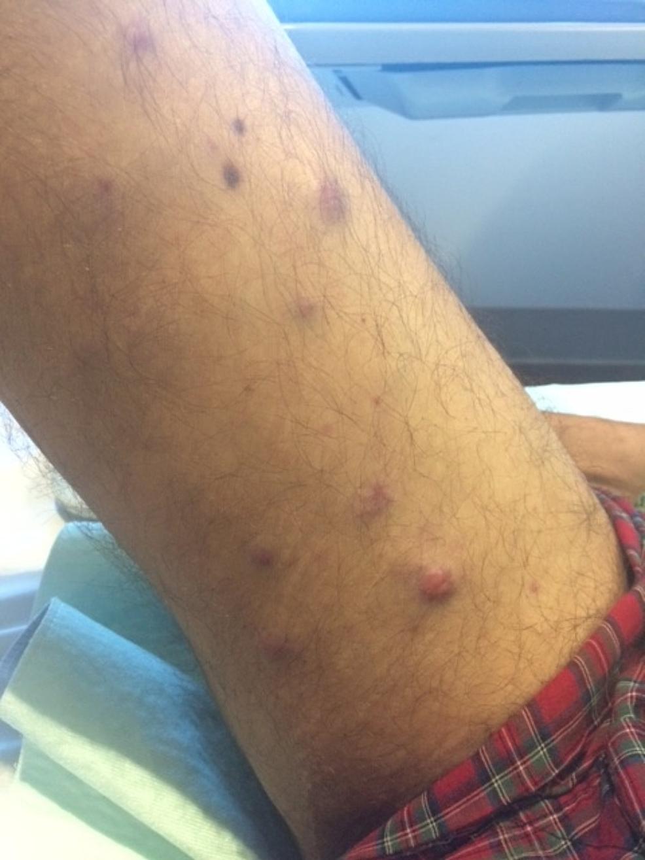 Plasma-cell-leukemia-cutis-presenting-on-the-leg-of-a-62-year-old-man-with-plasma-cell-leukemia-myeloma