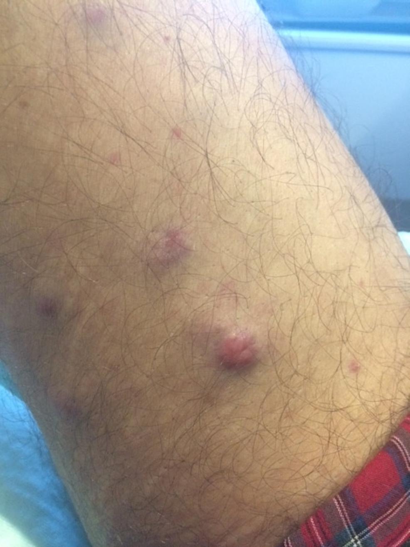 Plasma-cell-leukemia-cutis-presenting-as-cutaneous-nodules-on-the-leg