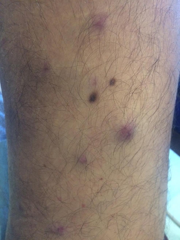 Nodular-lesions-of-plasma-cell-leukemia-cutis-on-the-distal-leg-of-a-man-with-plasma-cell-leukemia-myeloma