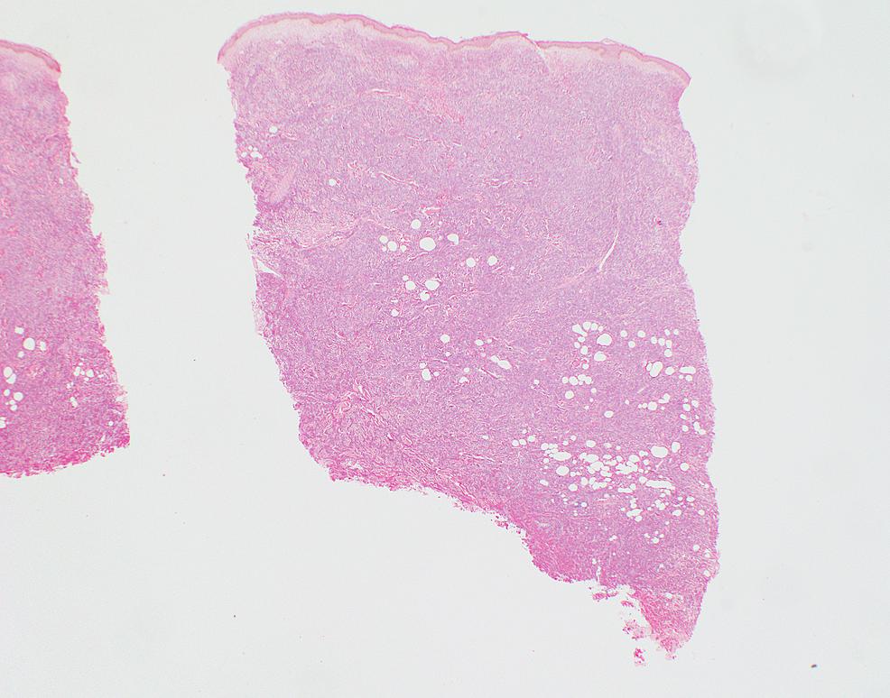 Lambda-light-chain-immunoperoxidase-immunohistochemical-stain-of-skin-biopsy-of-cutaneous-nodule-from-right-upper-leg