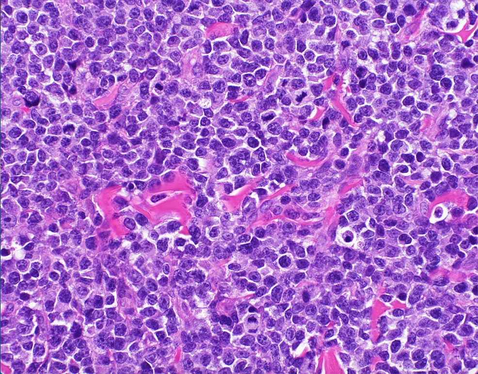Hematoxylin-and-eosin-stain-of-skin-biopsy-of-cutaneous-nodule-from-right-upper-leg