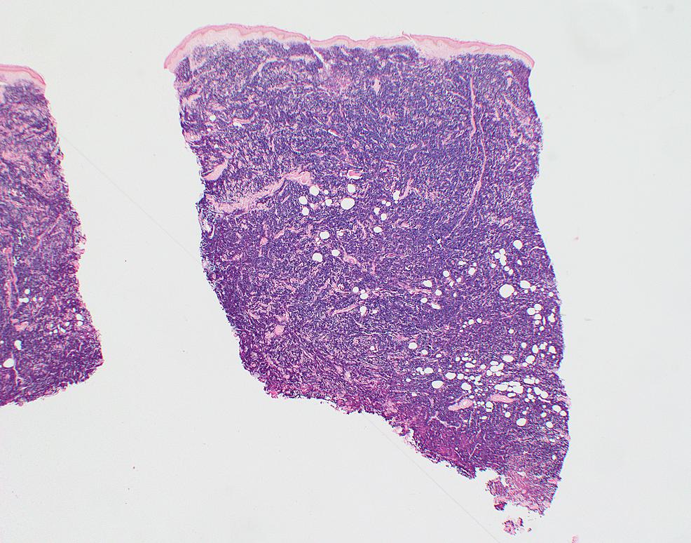 Kappa-light-chain-immunoperoxidase-immunohistochemical-stain-of-skin-biopsy-of-cutaneous-nodule-from-right-upper-leg