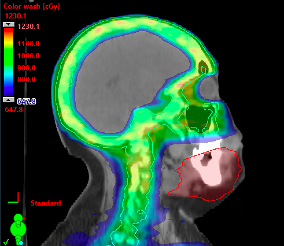 Fusion-of-her-original-radiation-treatment-plan-with-delineated-site-of-recurrence,-which-shows-the-mandibular-site-of-relapse-lying-outside-the-prescription-dose.