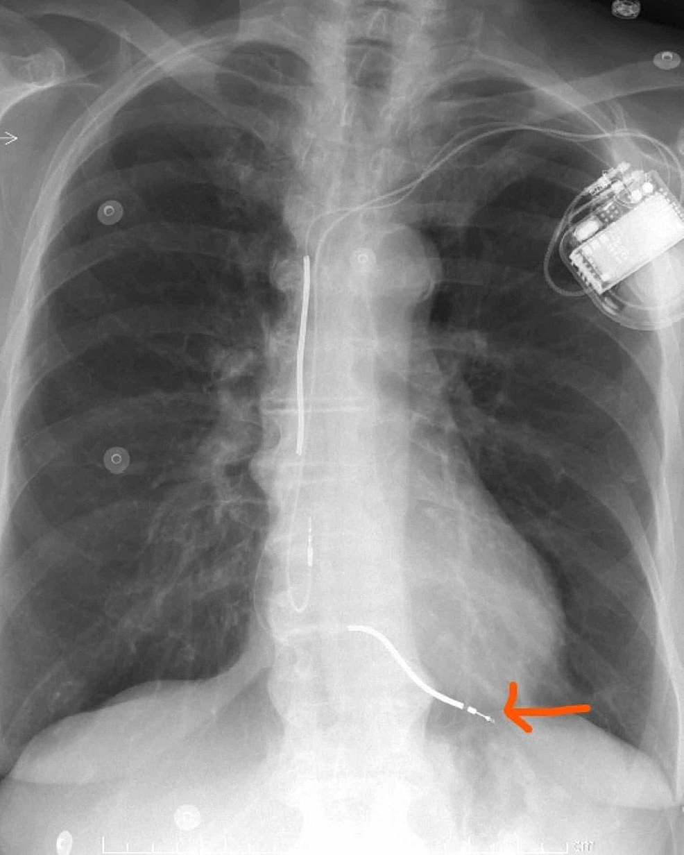 Chest-X-ray-showing-abnormal-position-of-the-ventricular-lead.