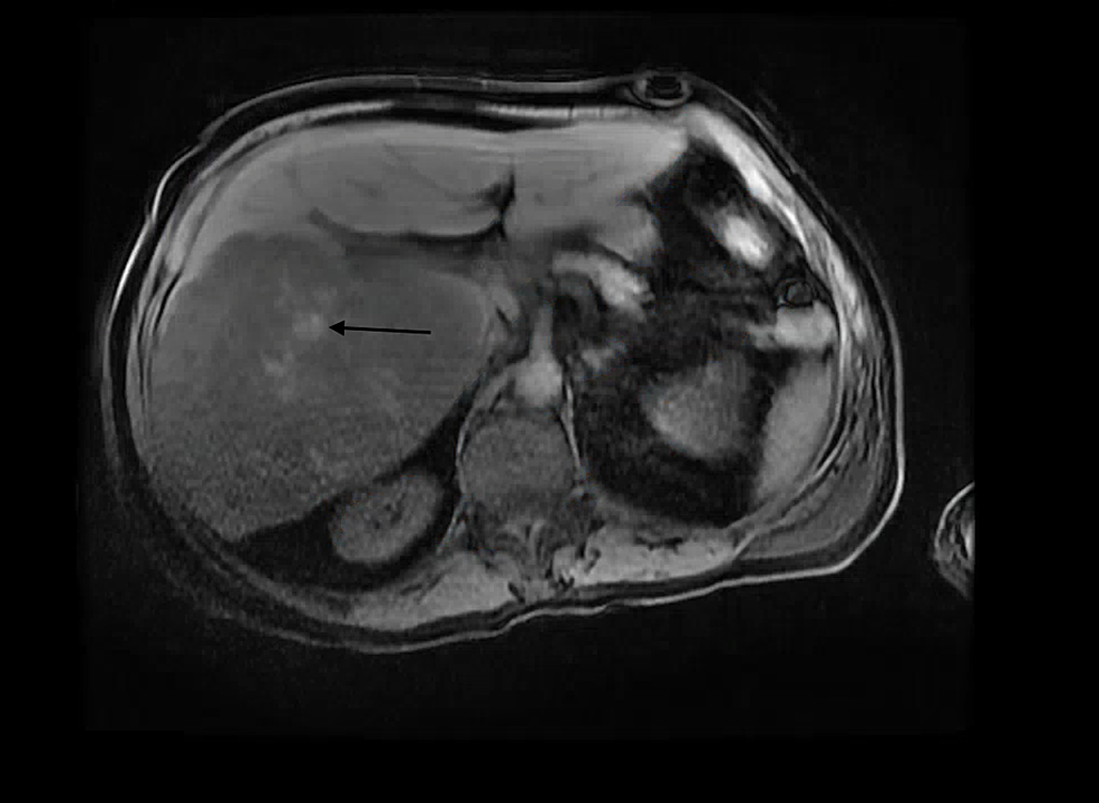 T1-Lava-Flex-Breath-Hold-Magnetic-Resonance-Imaging-(Axial)