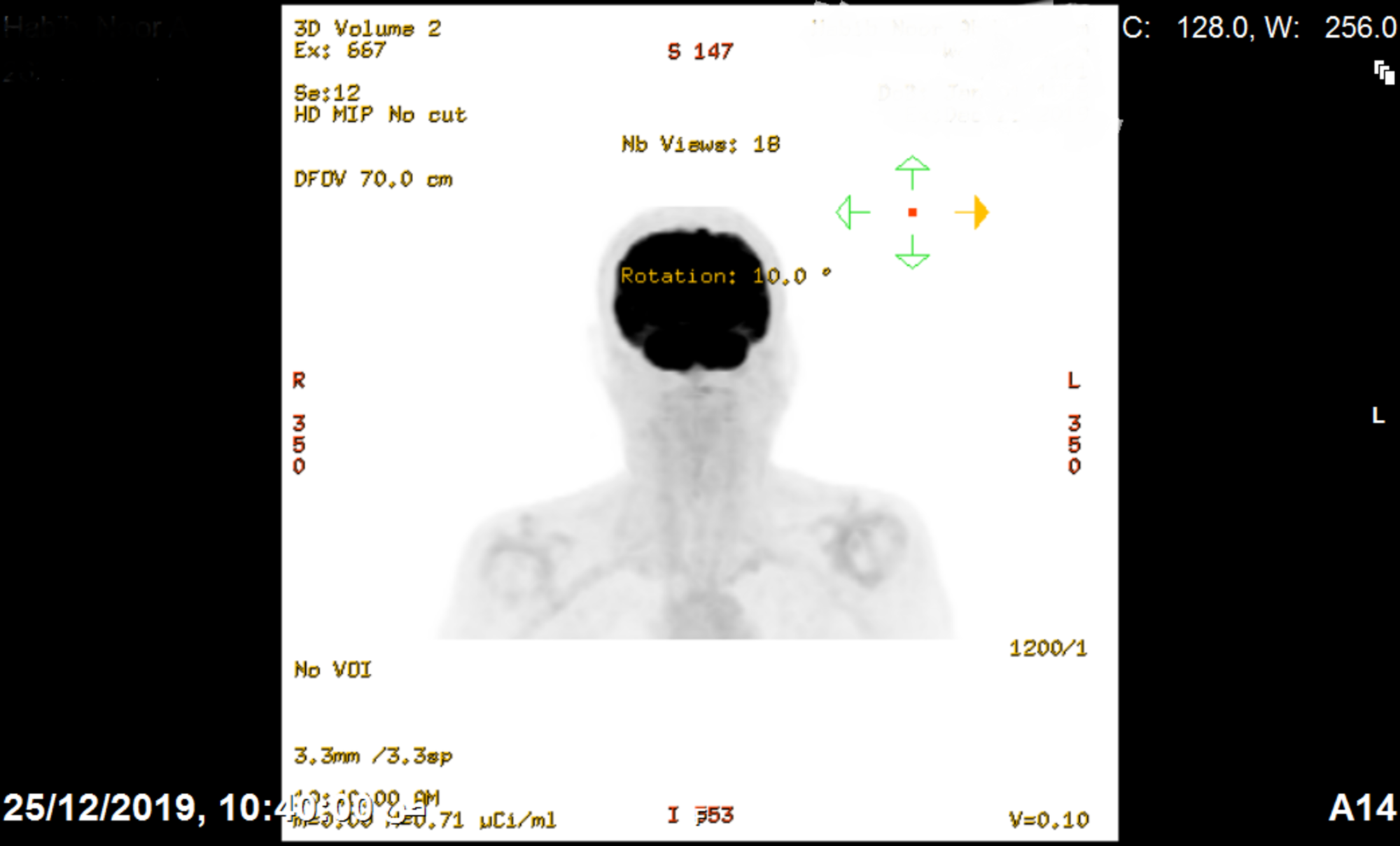 Cureus Positron Emission Tomography With Fluorodeoxyglucose Incidental Detection Of Colon Cancer In A Patient S Follow Up For Nasopharyngeal Carcinoma During The Covid 19 Pandemic A Case Report