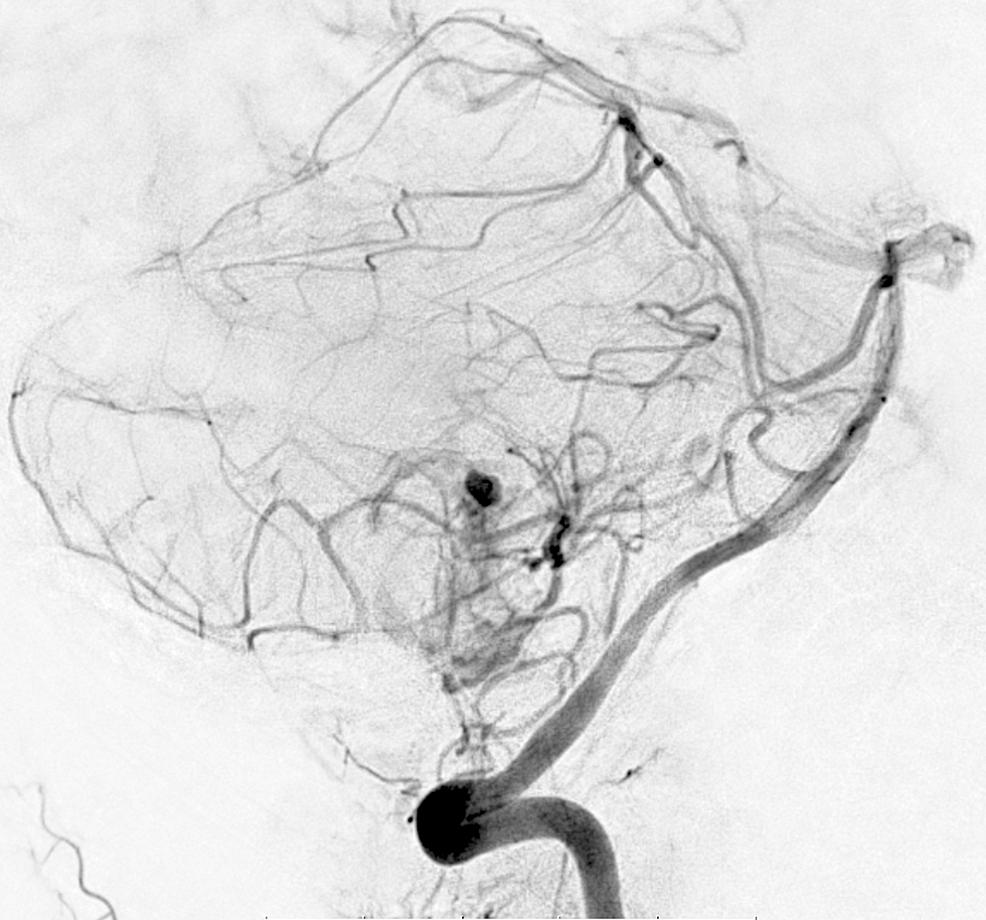 Preoperative-angiogram.