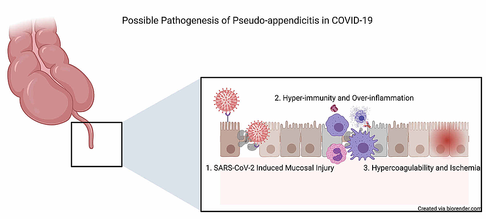 Proposed-mechanisms-of-COVID-19-induced-pseudo-appendicitis-