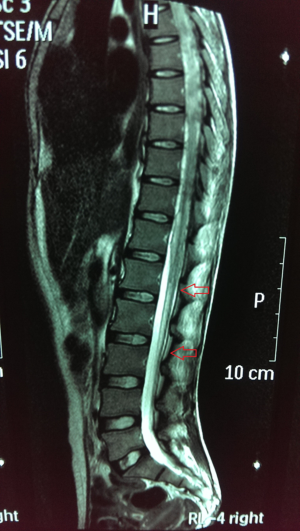 Dorsolumbar-magnetic-resonance-imaging-(MRI)-spine-with-contrast