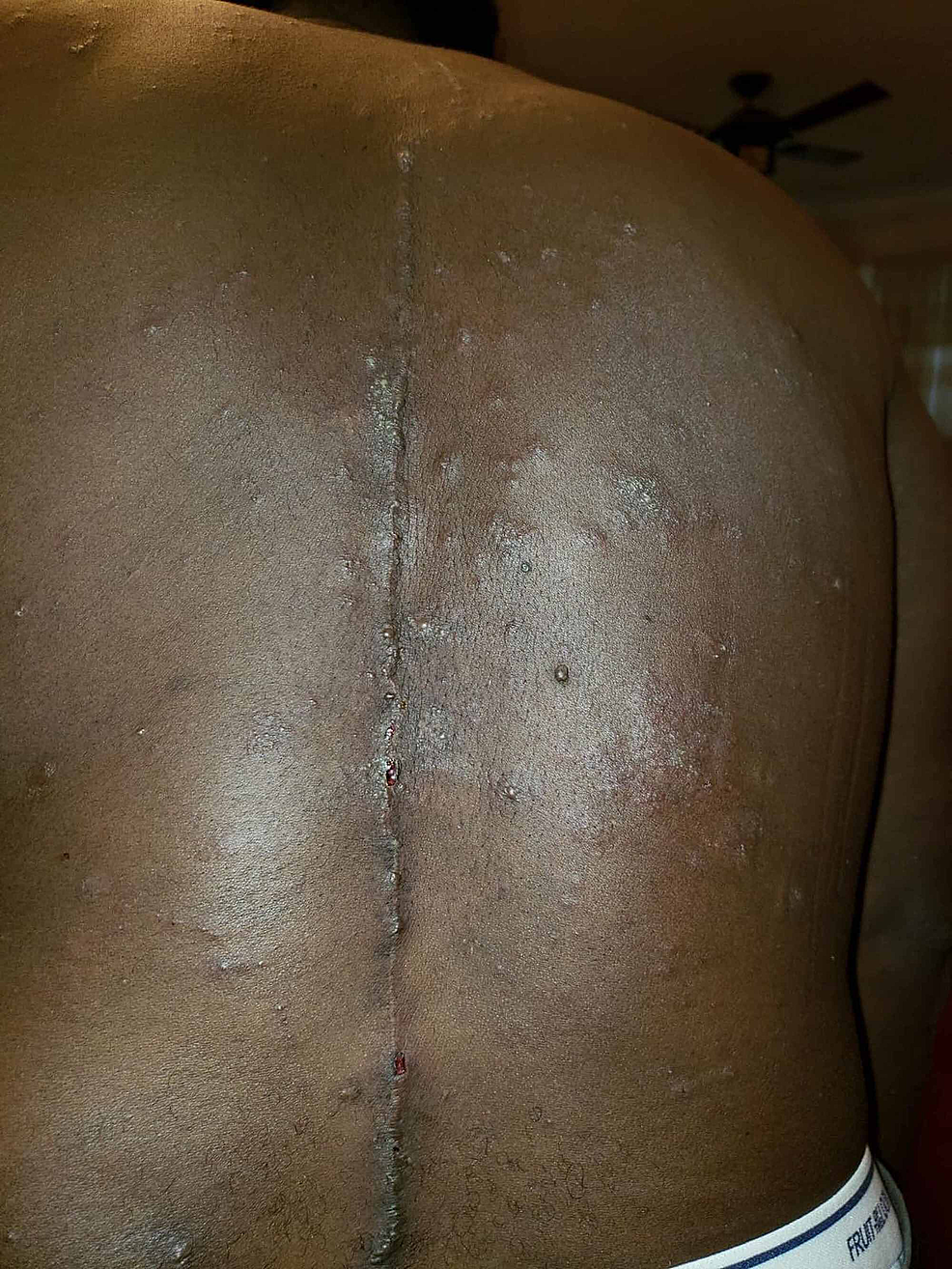 Sterile-pustules-distributed-throughout-the-back-and-torso-(note-previous-surgical-scar).