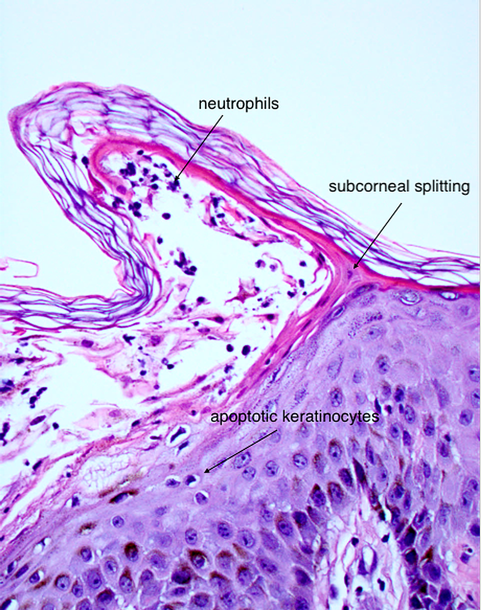 Splitting-of-the-subcorneal-layer-forming-a-sterile-vesicle-with-neutrophil-infiltration.