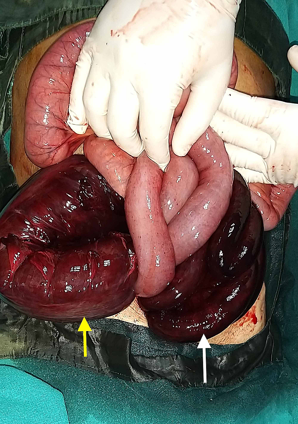 Intraoperative-image-showing-gangrenous-ileum-(white-arrow)-and-sigmoid-colon-(yellow-arrow).