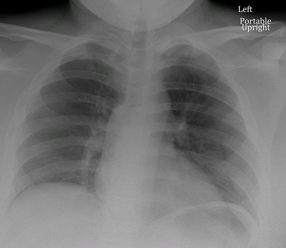 Admission-chest-x-ray