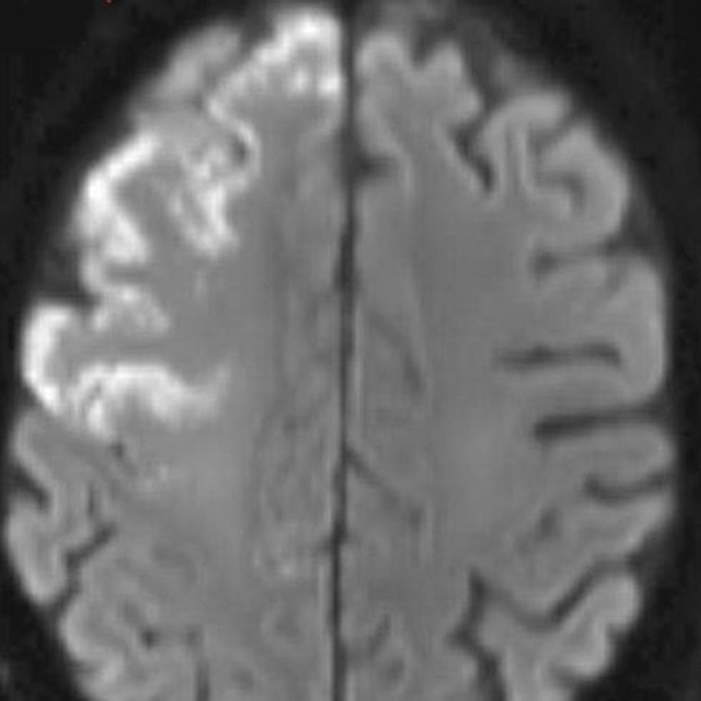 Acute-to-subacute-cortical-infarcts-involving-the-right-frontal-lobe