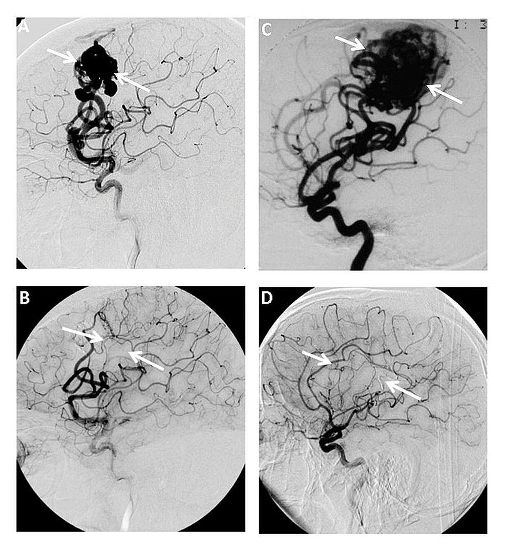 Angiography-images-showing-changes-in--arteriovenous-malformations-(AVM)-obliteration-rates-before-and-after-combined-treatment-over-a-time