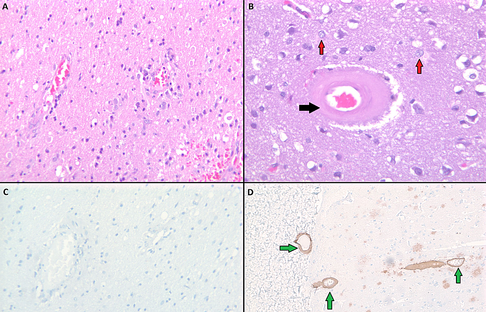 Pathology-images-of-negative-brain-biopsy-results-from-the-patient's-brain-(A-and-C)-and-positive-control-(B-and-D).