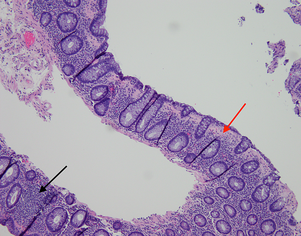 H&E-stain-showing-increased-intraepithelial-lymphocytes-(black-arrow)-and-subepithelial-collagen-band->-10-microns-(red-arrow)-consistent-with-collagenous-colitis.