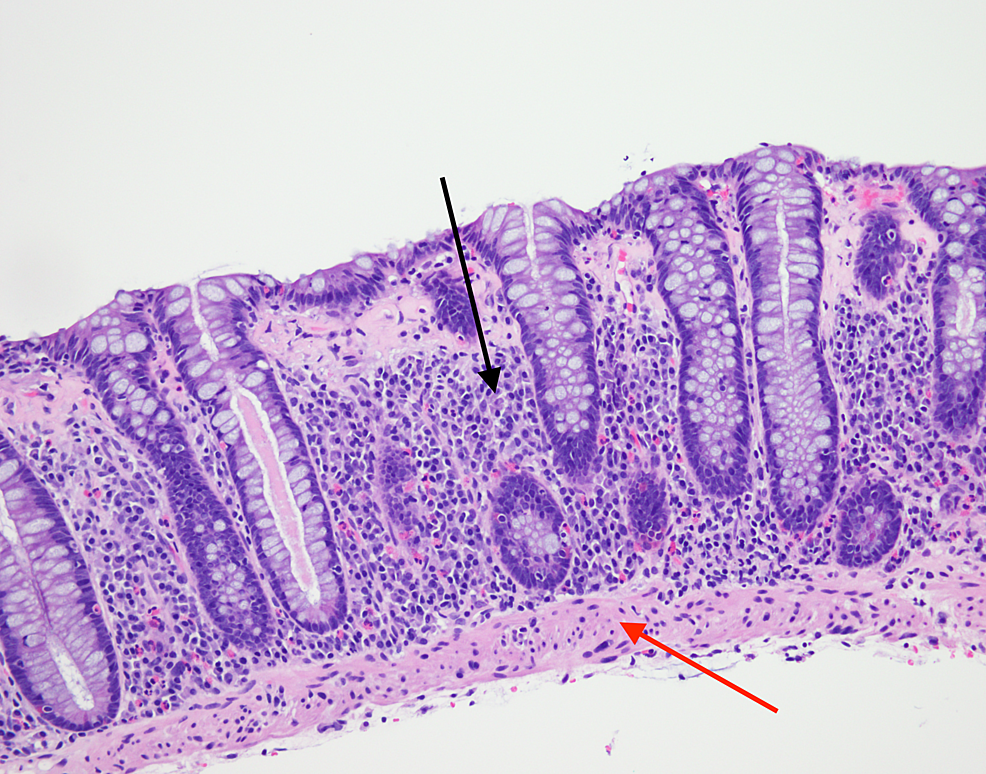 H&E-stain-showing-increased-intraepithelial-lymphocytes-(black-arrow)-and-subepithelial-collagen-band->10-microns-(red-arrow)-consistent-with-collagenous-colitis.