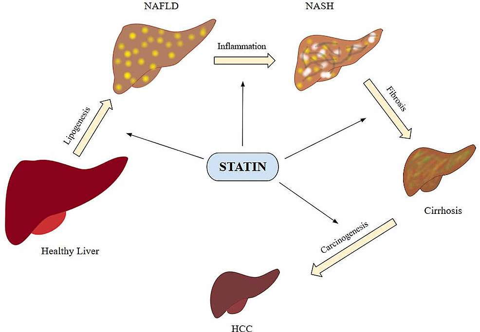 -Non-alcoholic-fatty-liver-disease-pathogenesis-and-statins