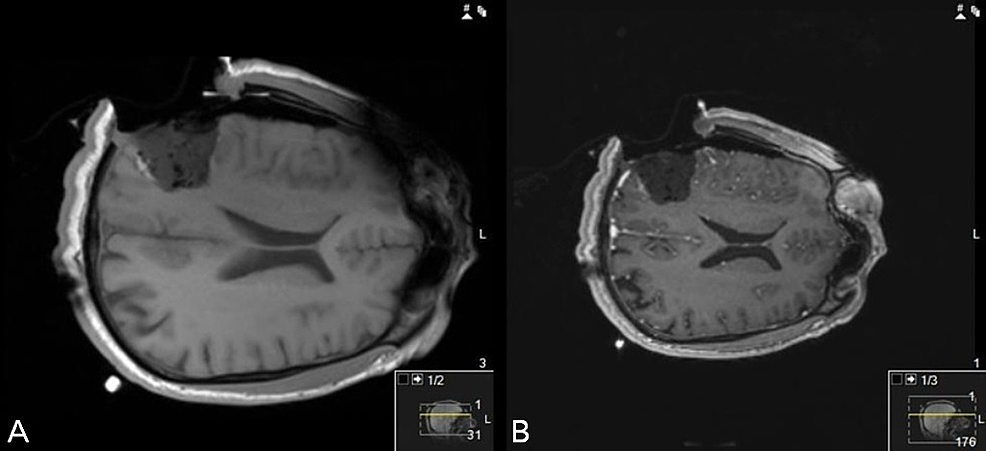 Intra-operative-MRI-(iMRI)-non-contrast-(A)-and-gadolinium-contrast-(B)-images-confirm-gross-total-resection