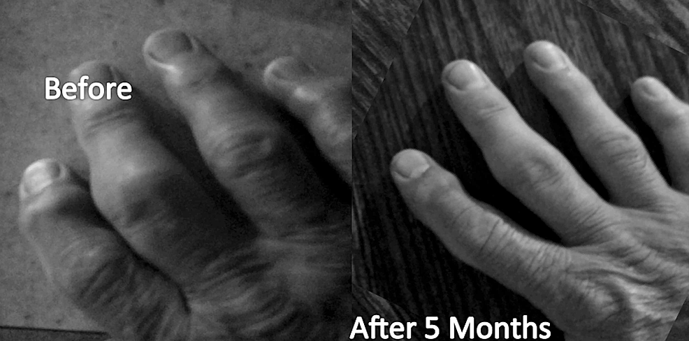 Visual-change-in-severe-rheumatoid-arthritis-after-five-months-in-the-health-revival-program-(HRP)