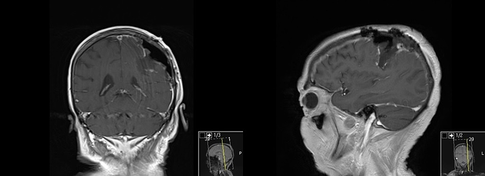Postoperative-MRI-demonstrating-complete-resection-with-preservation-of-feeding-vessels