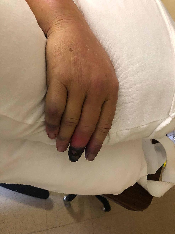 Gangrene-at-the-right-middle-finger