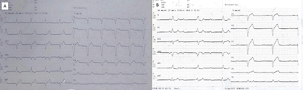 (A)-A-12-lead-electrocardiogram-with-sinus-rhythm-at-the-beginning-of-the-disease.-(B)-A-12-lead-electrocardiogram-illustrating-widespread-insult-to-the-cardiac-conduction-system:-a-complete-heart-block-with-a-ventricular-rate-of-32-42-beats-per-minute-with-evidence-of-sinus-node-dysfunction-and-interventricular-conduction-block.